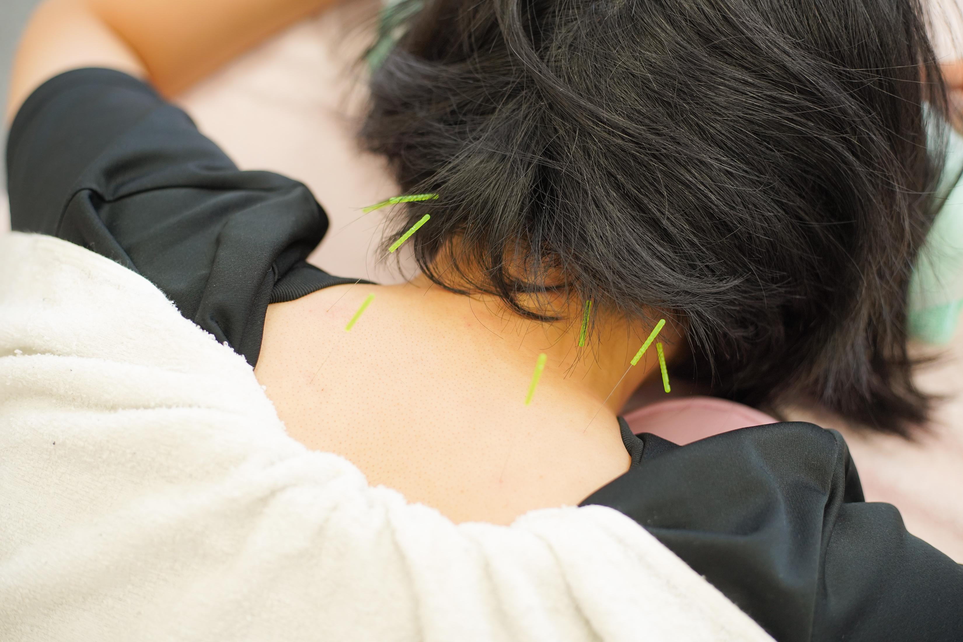 鍼灸治療|郡山まこと鍼灸整骨院